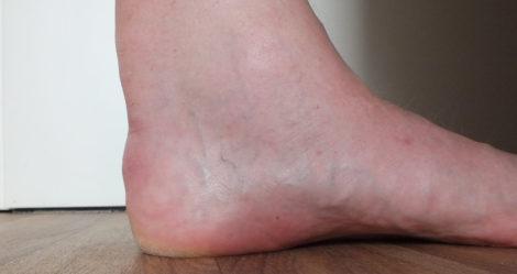 Linker Fuß mit vor 13 Jahren operierter Achillessehne