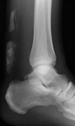 Verkalkungen der Achillessehne